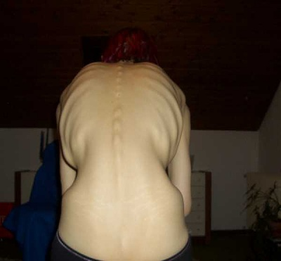 emo_girl_cuts_herself_picture-126